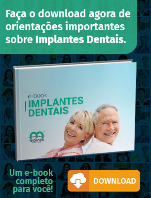 Implantes - image Implantes-Dentais on https://molinosodontologia.com.br