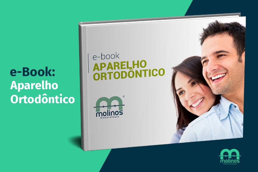 E-Books - image aparelho-ortodontico on https://molinosodontologia.com.br