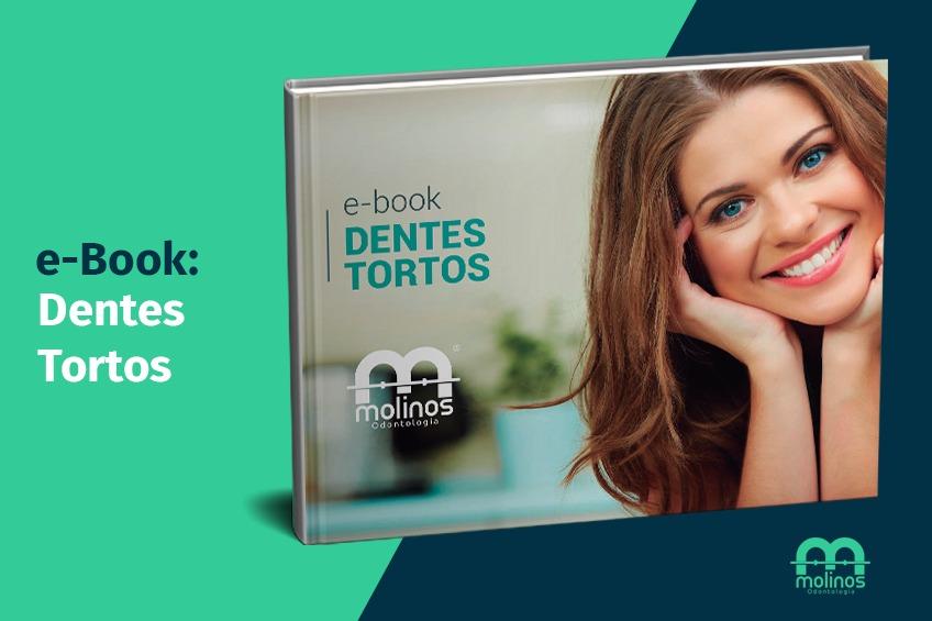 E-Books - image dentes-tortos on https://molinosodontologia.com.br