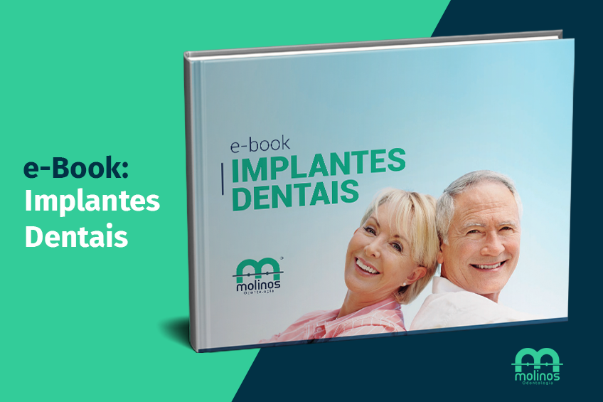 E-Books - image implantes-dentais on https://molinosodontologia.com.br