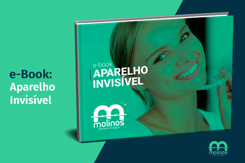 E-Books - image ebook_aparelhoinvisivel on https://molinosodontologia.com.br