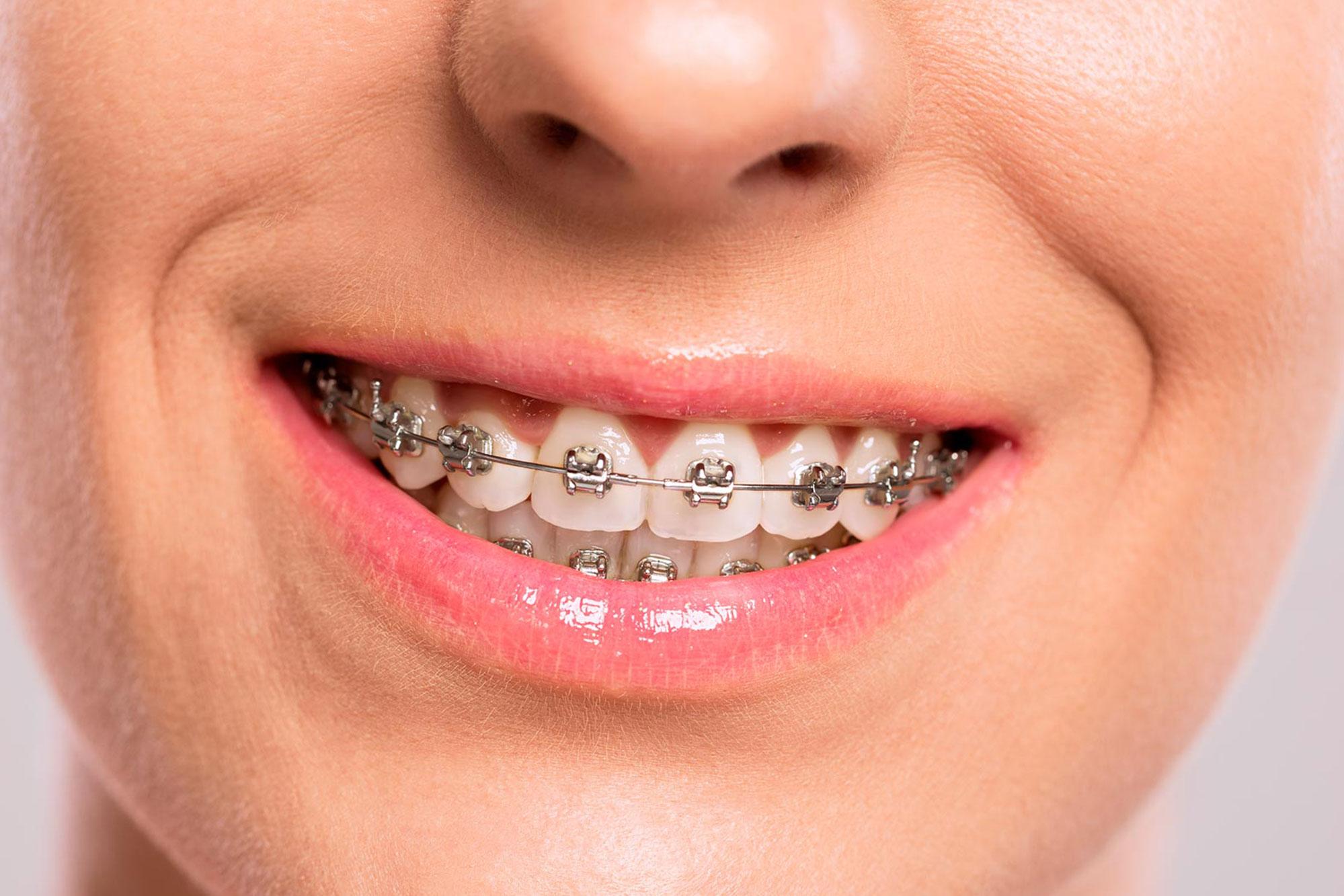 Você sabe o que é clareamento? - image aparelho-ortodontico on https://molinosodontologia.com.br